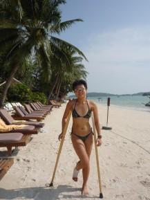 on crutch while beach holidaying